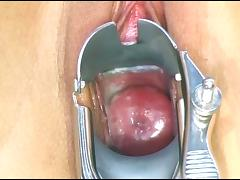 beautiful and creamy pink cervix through a metal speculum tube porn video